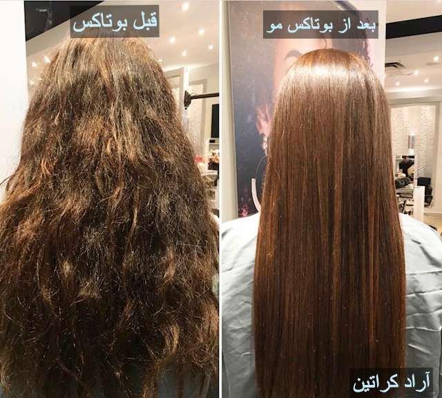 قبل و بعد بوتاکس مو